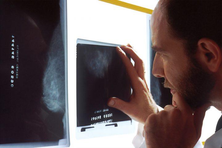 Mit diesen Untersuchungen wird dem Krebs auf den Zahn gefühlt