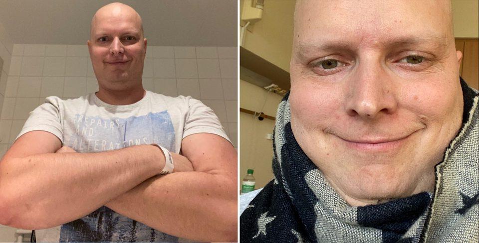 Dezember Alexander Heckrodt Meister Proper Glatze Gru Einfach Unverbesserlich Vergleich Chemotherapie Foto